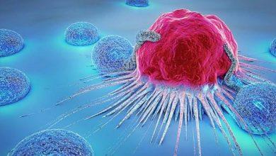 Photo of Cancer, bagaimana menyikapinya ?